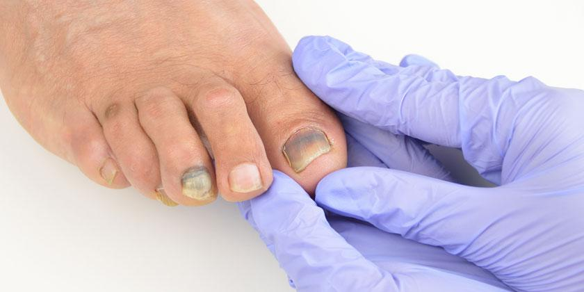 Melanoma en las uñas.
